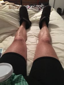Laying in bed with an ice bag on my sore spots. Rest and elevation are key to marathon recovery and no-mesh hernia surgery recovery. Ice helps too!